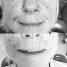 Lower face filler to smooth out marionette lines and nasolabial folds.