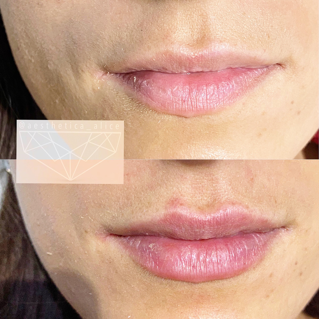 1mL Juvederm Volbella to add even, natural enhancement.
