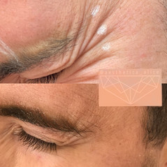 Botox for Men: men often need extra Botox than women due to their larger muscles