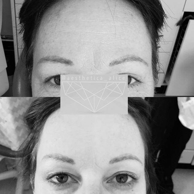 Book a consultation to discuss the treatment of lines and wrinkles.