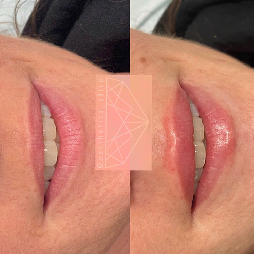 0.5mL Juvederm Smile to make the top lip match the lower lip more when smiling.
