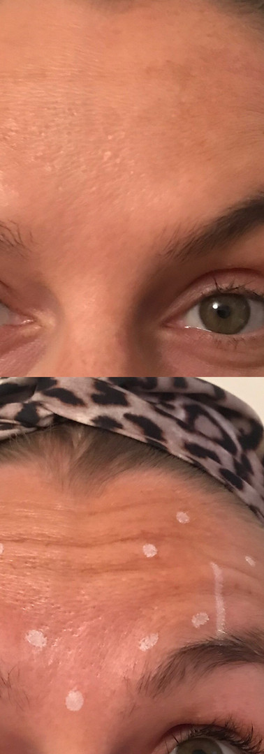 Forehead Botox with brow lift