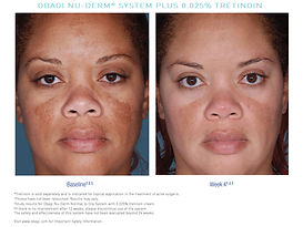 US_Nu_Derm_Tretinoin_Before_After_2.jpg