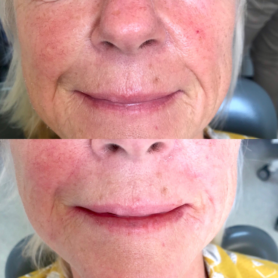 Nasolabial and marionette lines improved for this lady using 1mL Juvederm Volbella.