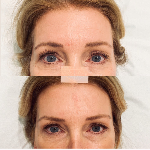 Static lines (when not moving face) can really improve with Botox treatments.