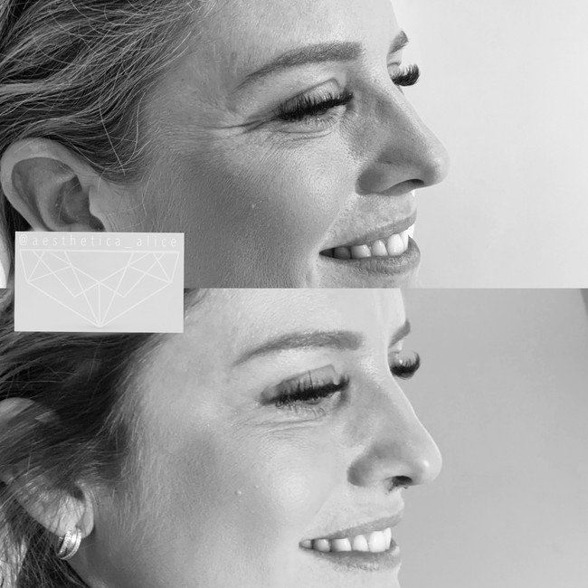 Book in for a consultation for the treatment of lines and wrinkles