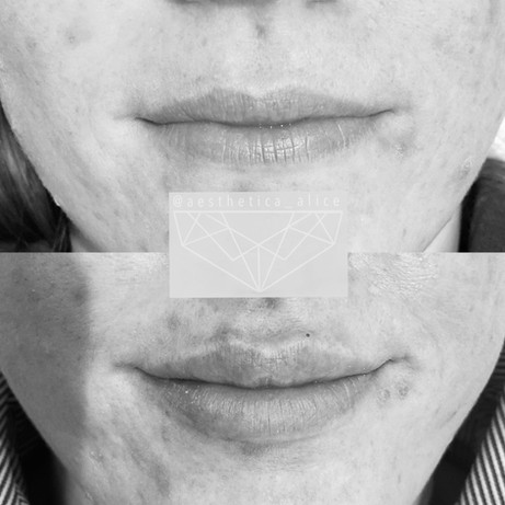 1mL of Juvederm Volbella to give a soft, even plump.