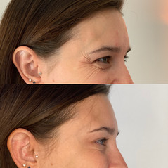 Crows feet can begin to sneak in from a young age, Botox acts as prevention method in stopping them from worsening.