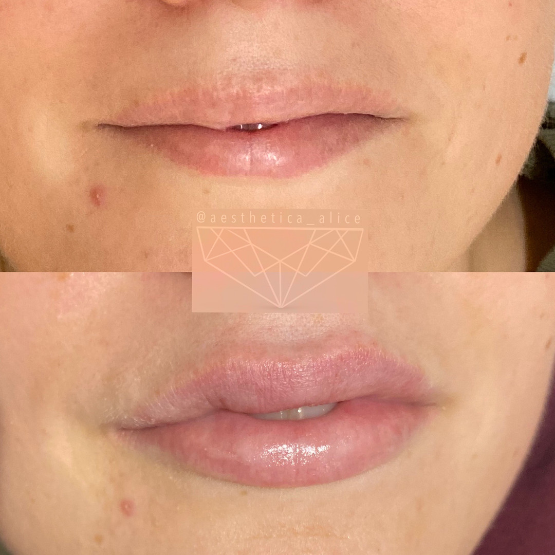 1mL Volbella by Juvederm to add hydration, and enhance the plump of these lips!