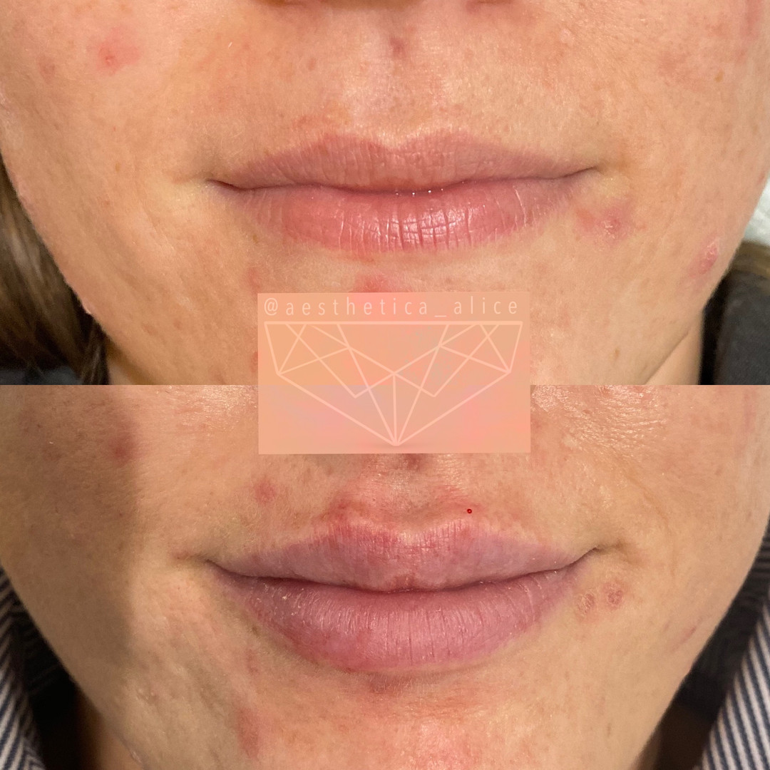 1mL Juvederm Volbella to create a soft, natural enhancement.