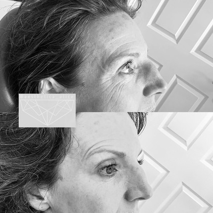 Book a consultation to discuss the treatment of fine lines and wrinkles.