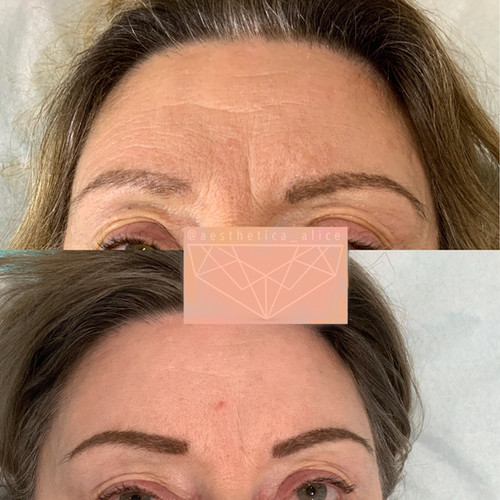Even static lines can show improvement with toxin treatments.