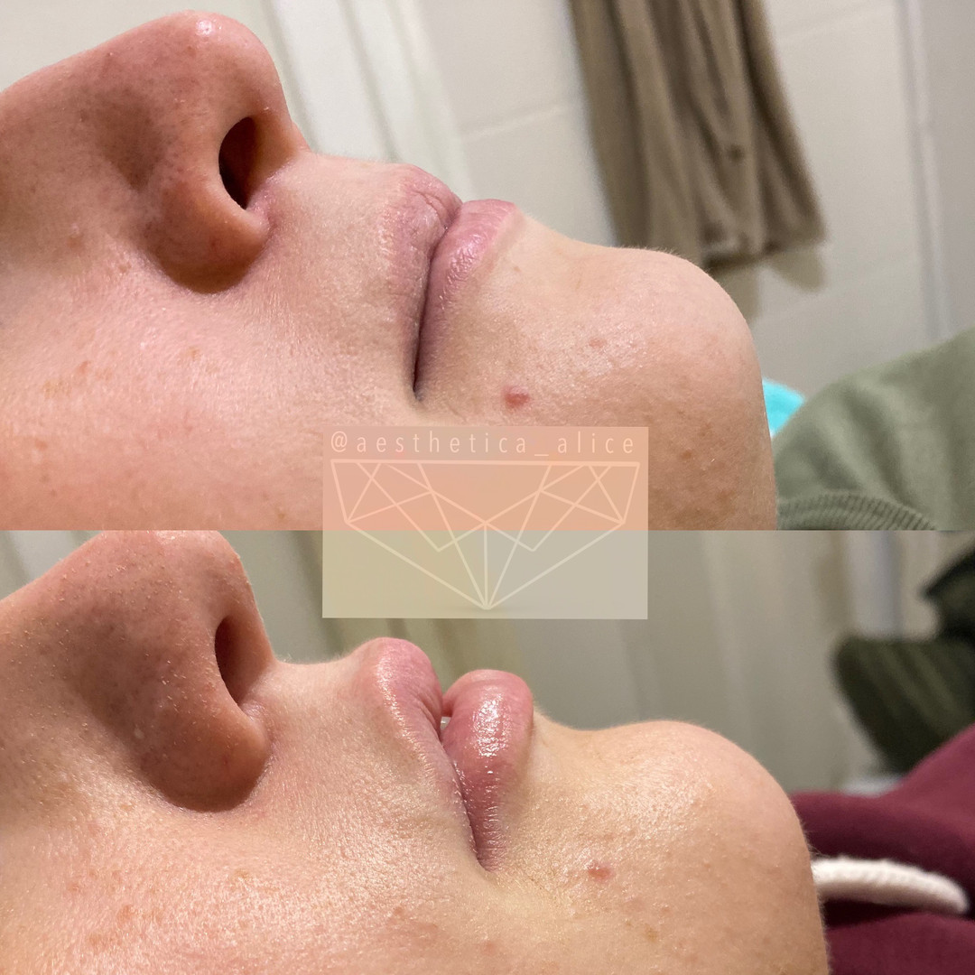 1mL Juvederm Volbella to create a natural plump.