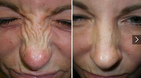 Bunny lines botox treatment in exeter and devon