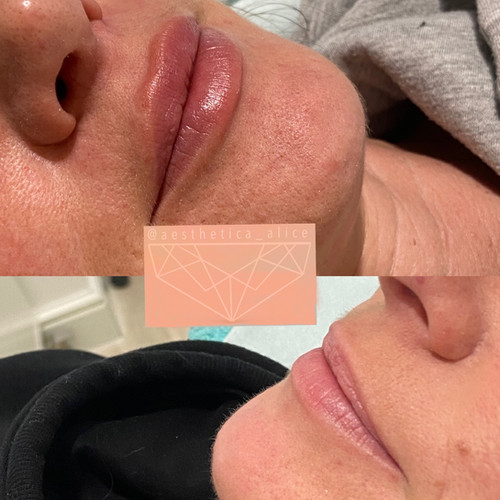 0.5mL Juvederm smile to redefine the lip borders.