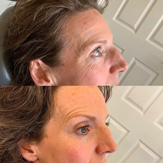 You can achieve an eyebrow lift with Botox if suitable, which opens up the eye area and helps with application of makeup and a fresher look.