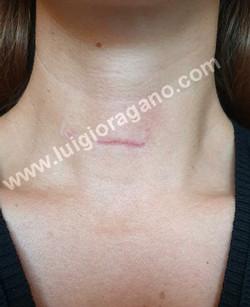 Cicatrice chirurgica - Tecnica Mini-Invasiva - Dott. Oragano