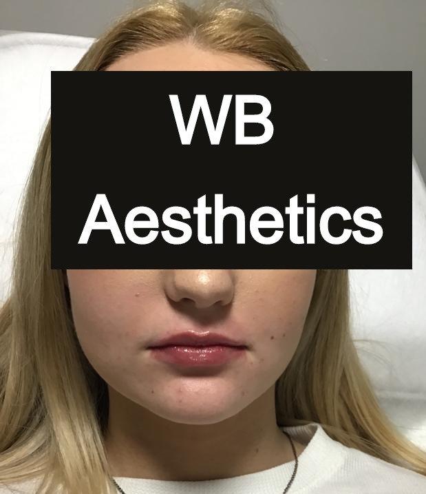 WB-Lip filler enhancement