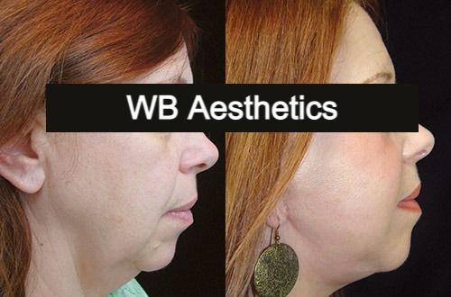 WB Chemical Peel Treatment
