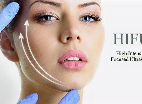 HIFU @ WB Aesthetics what is it? Does it really work?