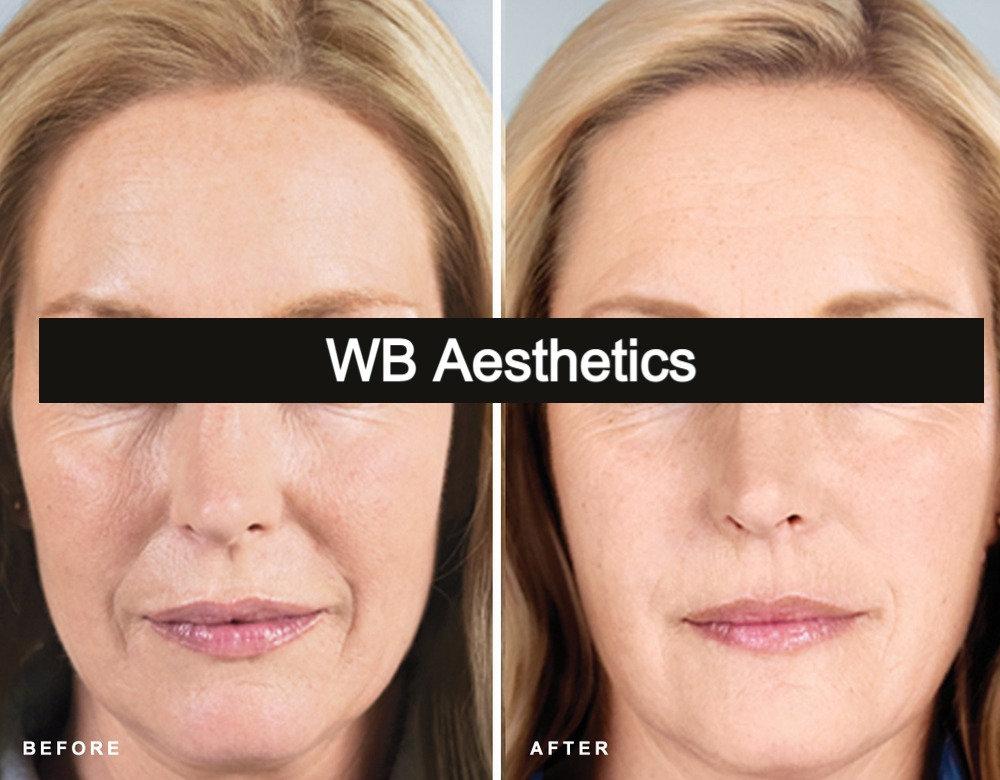 WB HIFU Treatment