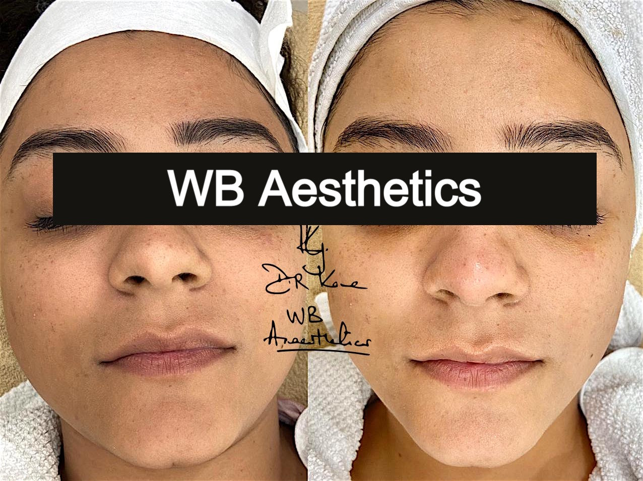 WB Signature Vegan Facial