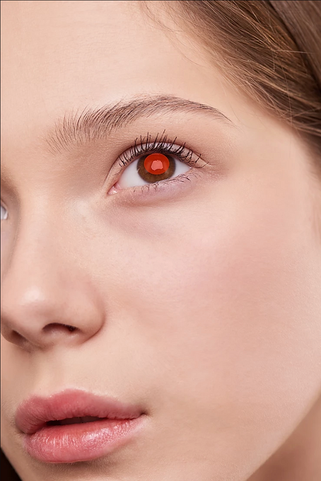 What is red eye? How does it happen?