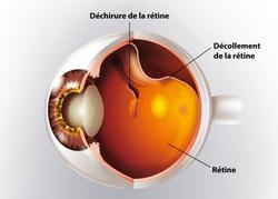 decollement retine schéma