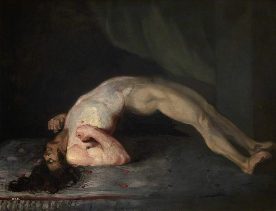 Painting by Sir Charles Bell of a soldier suffering muscle spasms of tetanus. 1808.
