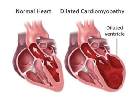 Dilated Cardiomyopathy in Dogs