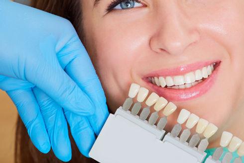article_teeth_whitening_dentist.jpg