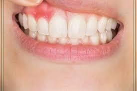 7 sinais de que a gengivite evoluiu para uma periodontite