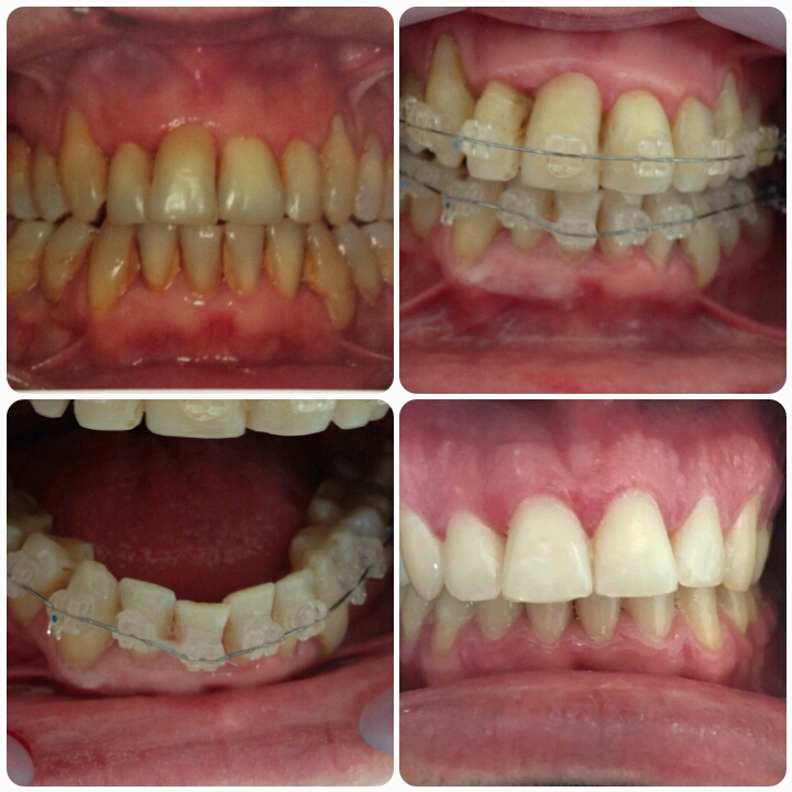 Ortodontia na 3° Idade