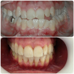 Ortodontia em adulto