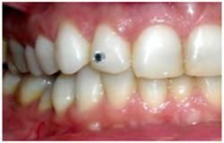 Piercing Dental