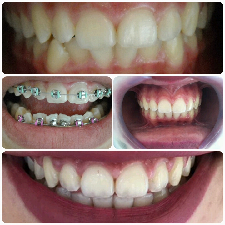 Ortodontia em Adolescente