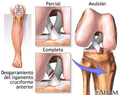 ¿Cómo rehabilitar tu ligamento cruzado anterior?