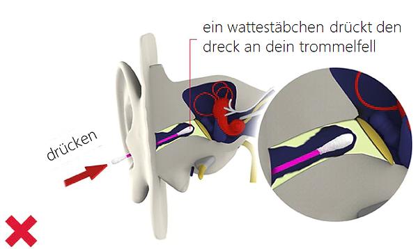 ein wattestäbchen drückt den dreck an dein trommelfell