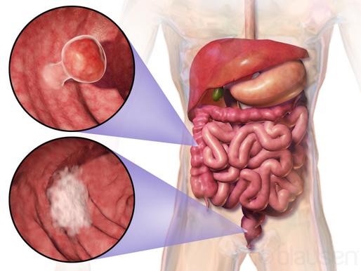 6 lakih načina da smanjite svoj rizik od kolorektalnog karcinoma