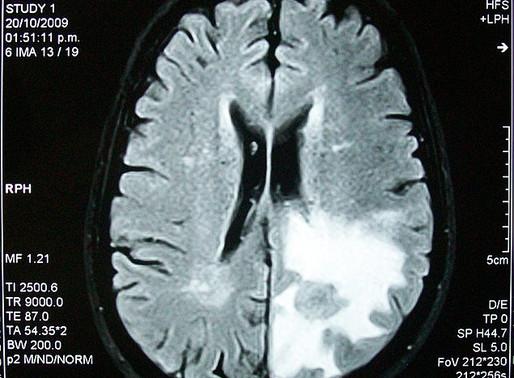 Znanstvenici nadilaze moždanu barijeru u primjeni terapije