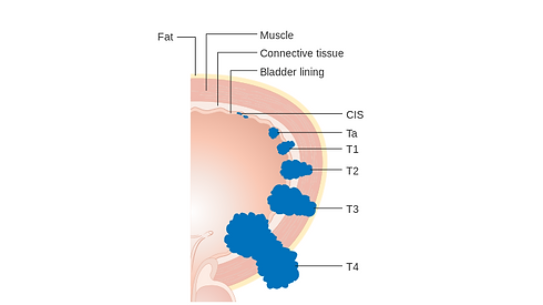 Diagram_showing_the_T_stages_of_bladder_