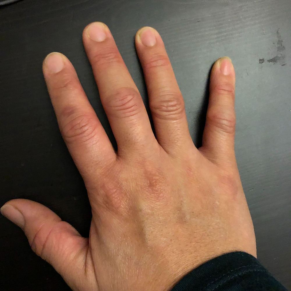 Inflammed Right hand