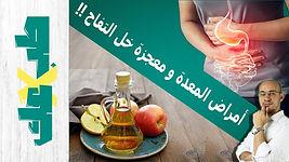 حمض المعدة و خل التفاح | طب ولا عك؟ | قرحة المعدة | ارتجاع المريء | عسر الهضم | العلاج الحقيقي