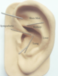 ear acupuncture- NADA protocol