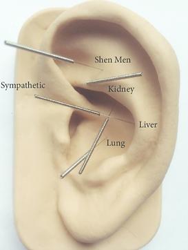 Ear Acupuncture, Mullumbimby, NADA proto