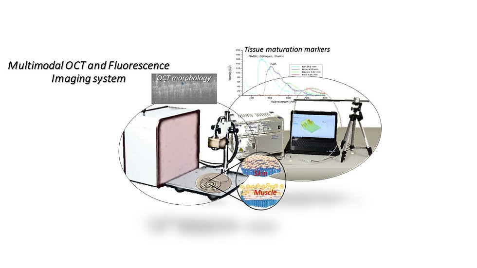 Multimodal OCT and Fluorescence Imaging
