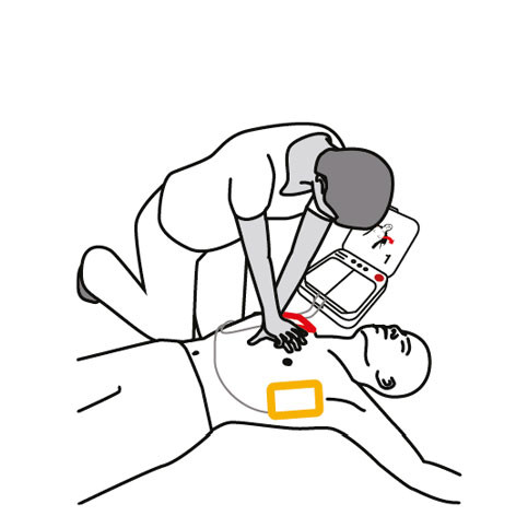 The defibrillator will instruct you to begin chest compressions.