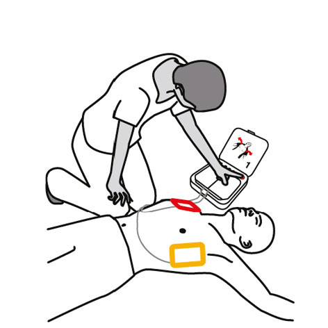 """If the defibrillator heart rhythm analysis determines that a shock is needed you will hear """"EVERYONE CLEAR"""""""