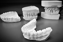 Patients can have custom-made trays for tooth whitening done in our office. We also provide retainers, night guards, and beautifully crafted, lab-made crowns.