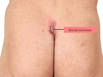Киста копчика операция | Лечение кисты копчика СО2-лазером
